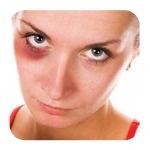 Как избавиться от фингала под глазом?