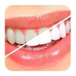 Как восстановить и укрепить эмаль зубов